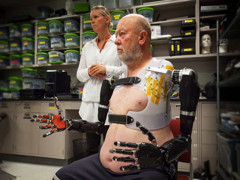 Double-amputee successfully tests highly-advanced bionic arms