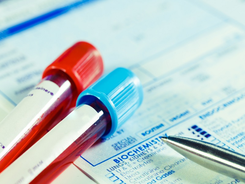 Irish team develops €25 bowel cancer blood test kit