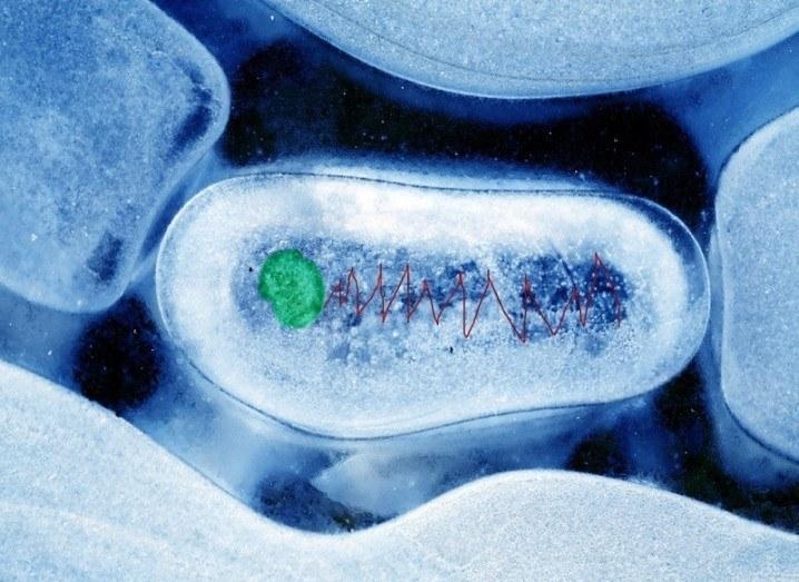 Robot brain bacteria