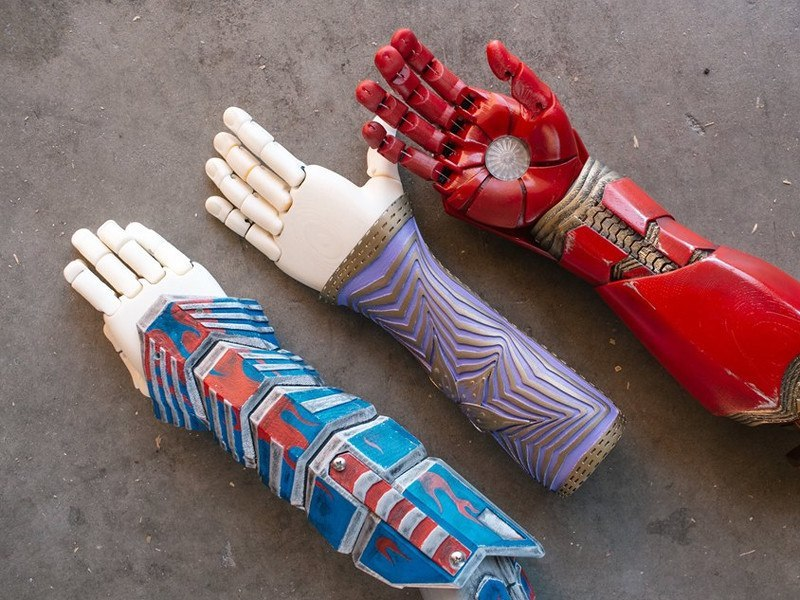 3D printing bionic arms for displaced Syrian kids