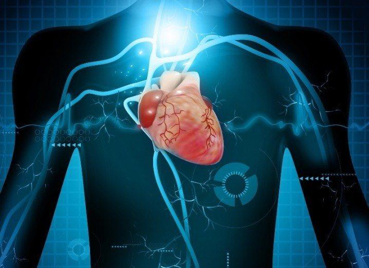 Cardio | Blueacre Openmind H2020