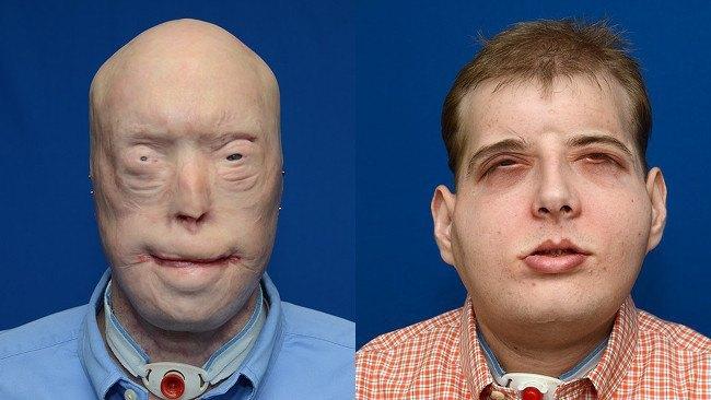 Patrick Hardison | Face transplant