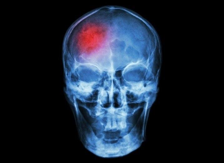 Brain surgery sensor