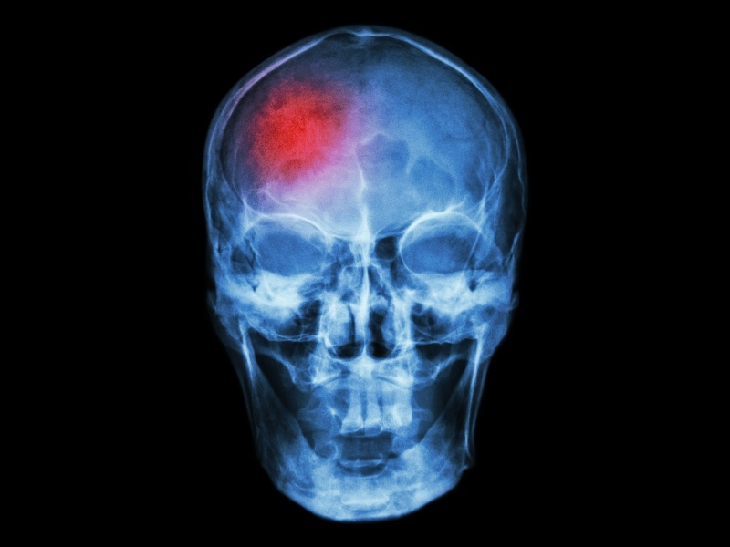 New surgical sensor could revolutionise brain surgery