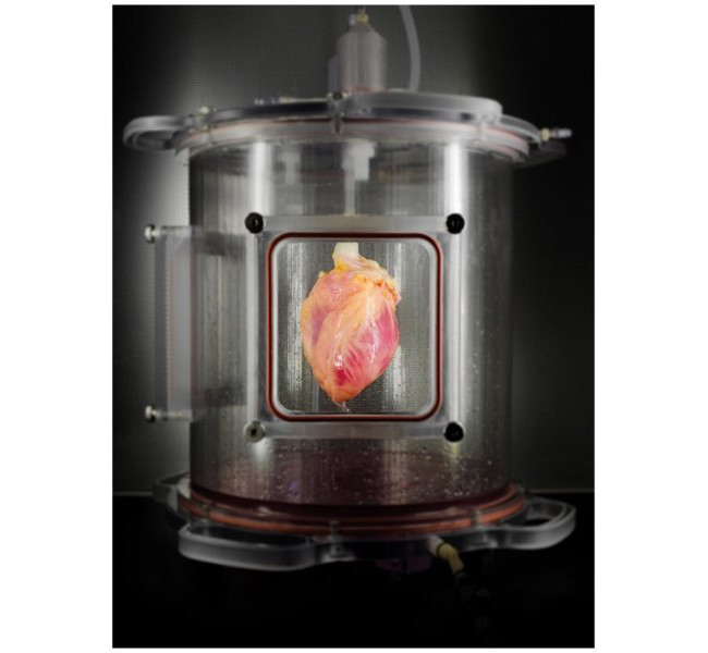 Heart surgery stem cells