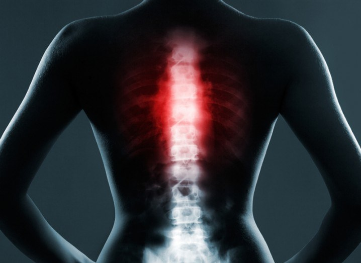 Spinal injuries surgery
