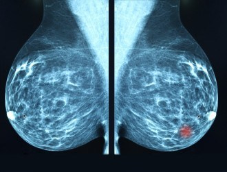 NUI Galway scientists make breast cancer breakthrough