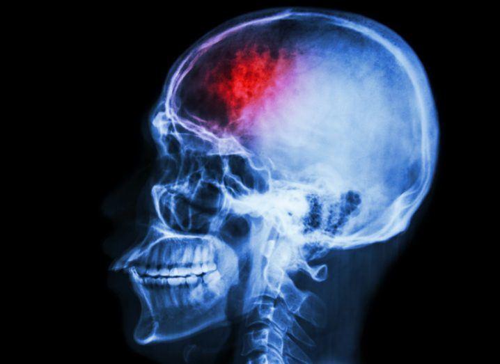 CTE Brain Injury