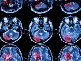Researchers 'blown away' by stroke treatment using stem cells
