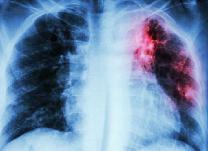 Angiogram Heart Disease