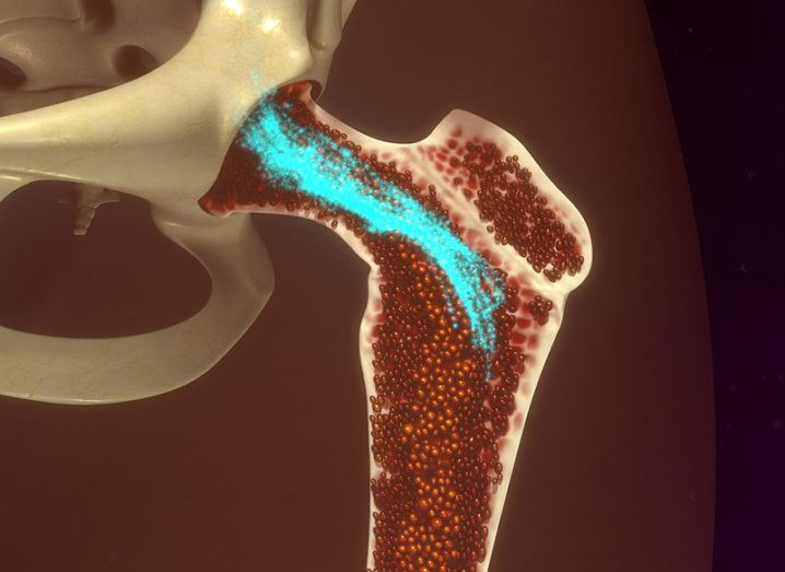 3D bone-scanning illustration