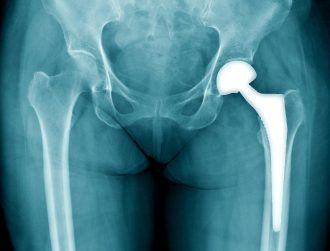 3D graphene could replace titanium in bone implants