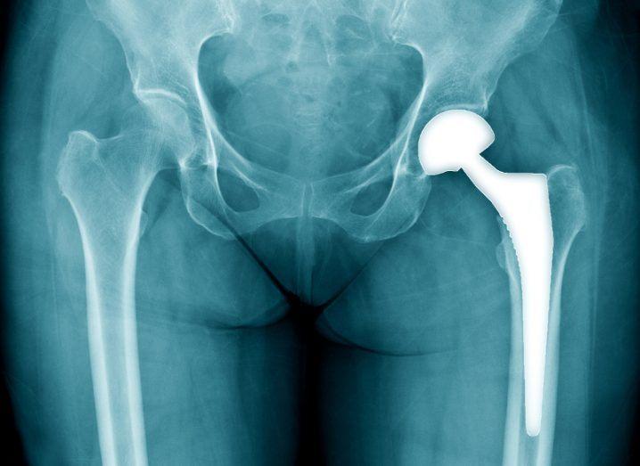 Graphene bone implant