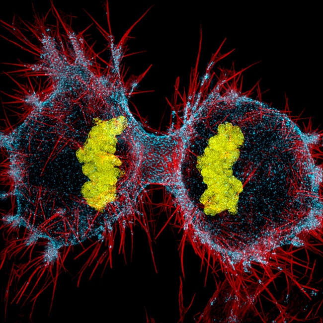 Nikon Small World Photomicrography Competition: Human HeLa cell undergoing cell division(cytokinesis). DNA (yellow), myosin II (blue) and actin filaments (red), in structured illumination at 9x. Image: Dr. Dylan Burnette