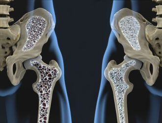 Osteoporosis test developed at UL to benefit millions of people