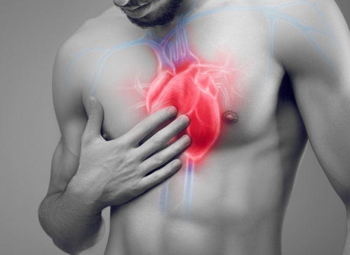 Heart surgery. Image: Bluskystudio/Shutterstock