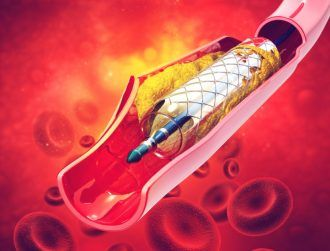 Stents coated in Viagra could prevent dangerous blood clots