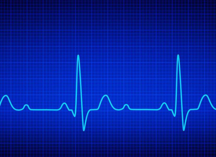 heart-wave
