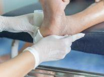 Device that could heal diabetic foot ulcers using DNA gets €1.3m funding