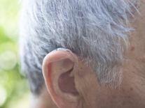 Proof that old men have big ears among winners of 2017 Ig Nobel prizes