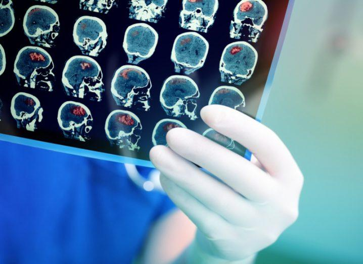 Parkinson's brain scans