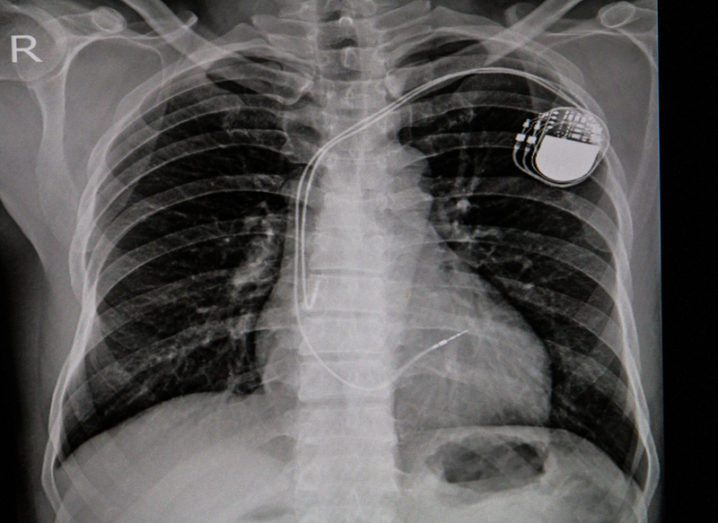 Pacemaker implant