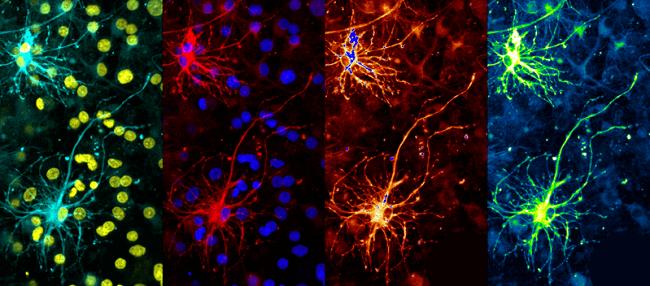 Warhol's Neuron