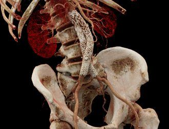 Medical imaging: A journey inside the human body with Cinematic VRT