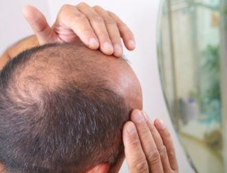 Cure for baldness? Unlikely drug discovery shows amazing promise