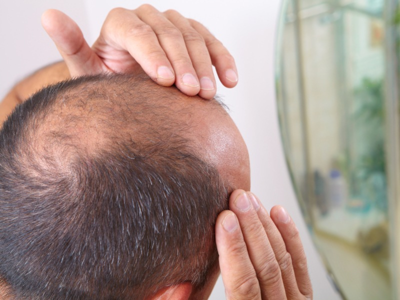 Cure For Baldness Unlikely Drug Discovery Shows Amazing Promise Amazing Male Pattern Baldness Cure Discovered