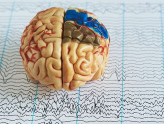 Epileptic seizures could be a thing of the past with new brain implant