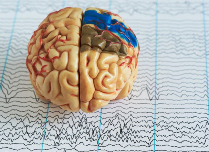 Human brain model showing areas of seizure on a background of brain waves from electroencephalography.