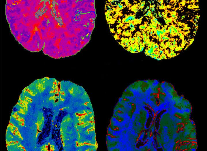 A CT scan image of (clockwise) four human brains in pink, yellow, green and blue.