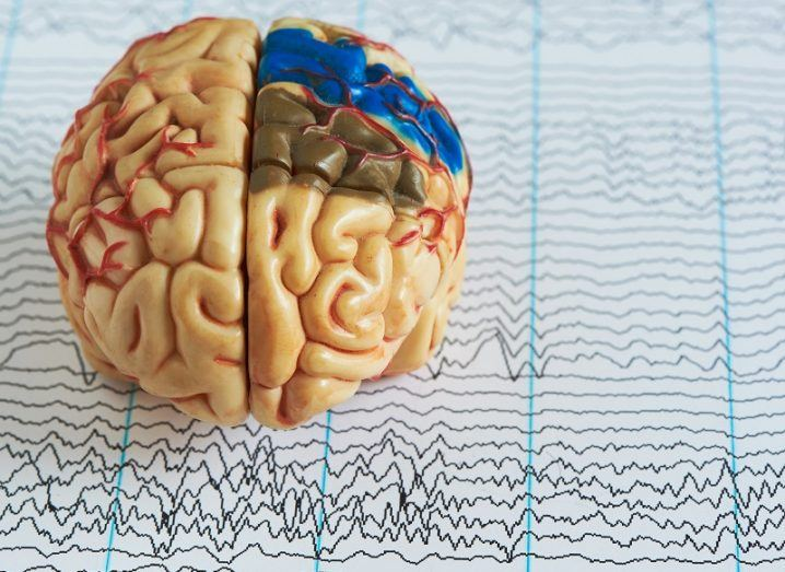 Human brain model on a background of brain waves from electroencephalography.