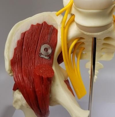 3D model of human muscle with the biodegradable implant placed on it.