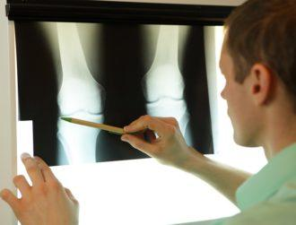Irish implant breakthrough could treat one of the trickiest bone infections