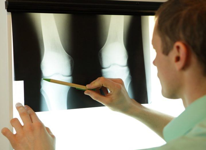 Specialist in a white coat pointing with a pencil to an x-ray of a knee joint.