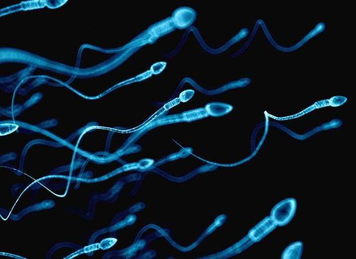 Sperm illuminated in blue travelling from left to right against a black background.