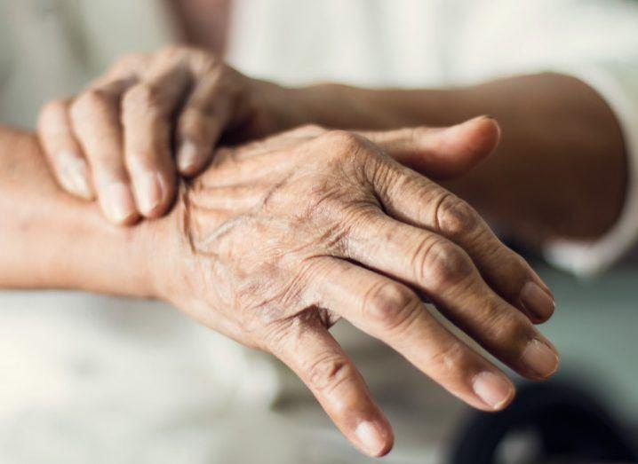 Close-up hands of senior elderly woman patient with Parkinson's disease symptoms.