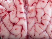 Groundbreaking experiment brings dead pig brains partly back to life