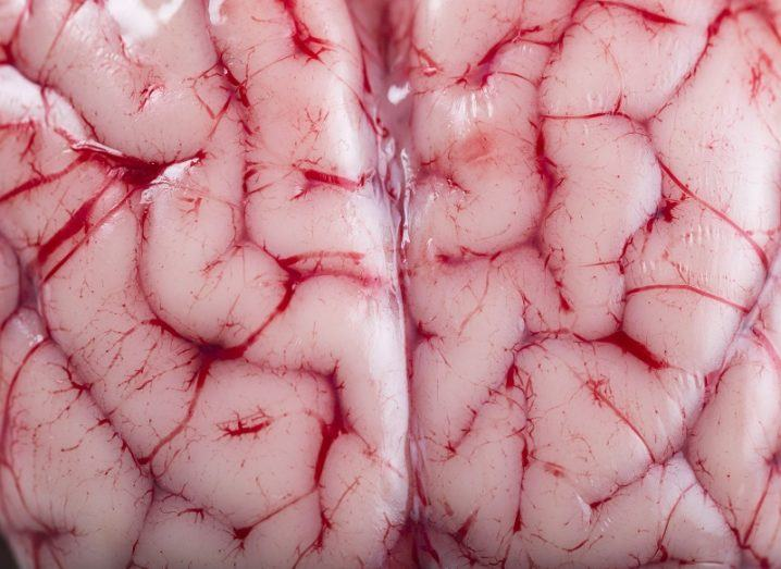 Close-up of a pink brain with red veins.