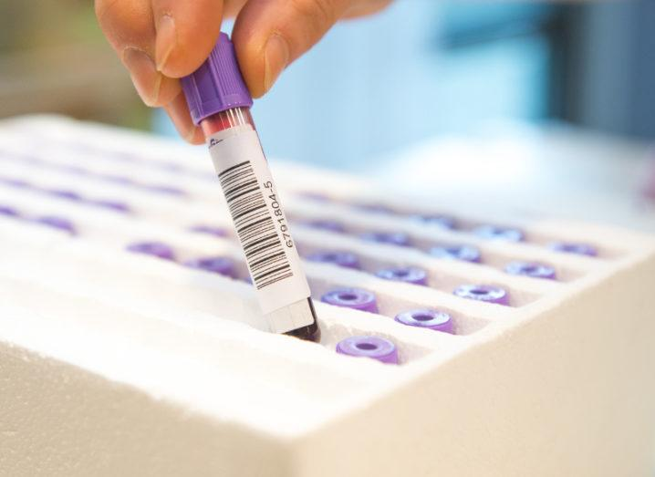 View of a hand plucking vial of blood with a purple top out of a foam package with slots filled with carefully organised samples.