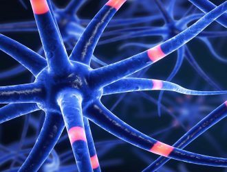Root causes of multiple sclerosis now in sight after huge breakthrough