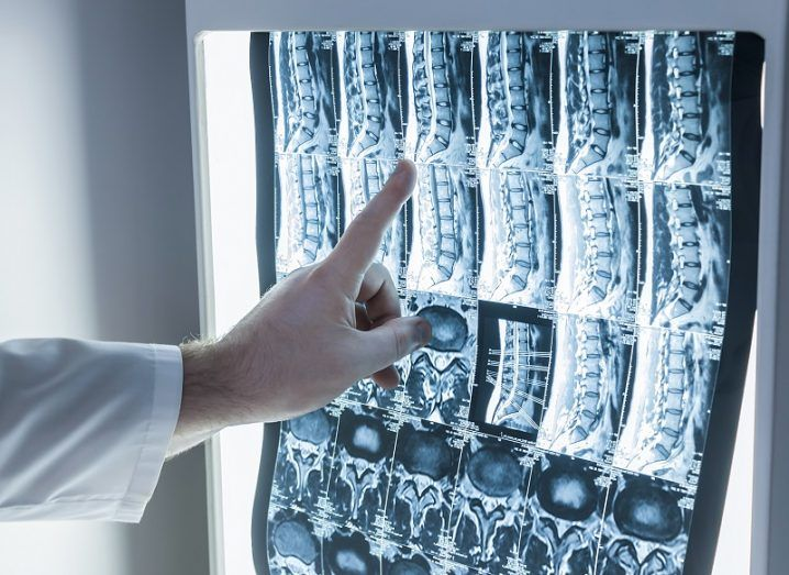 Hand of a doctor in a white coat pointing to x-rays of a spine on a backlit display.