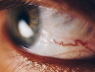 'Extremely promising' brain electrode for the blind bypasses eyeball entirely