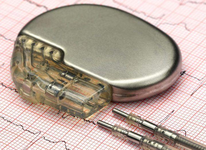 Pacemaker on an EKG readout sheet.