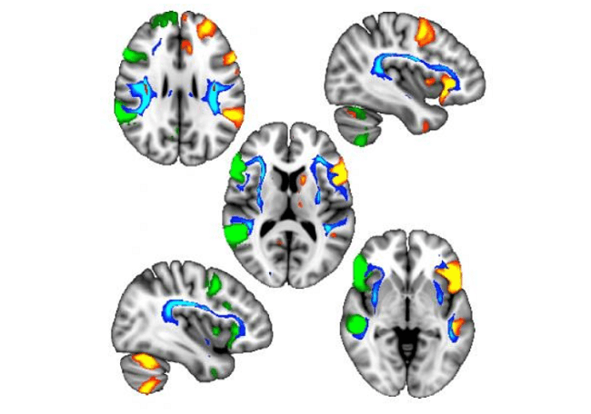 Brain scans showing different genetic regions of the brain.