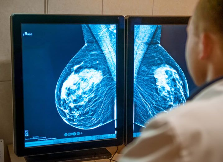 Dual computer monitors displaying the results of a mammogram, viewed over the shoulder of a doctor examining them.