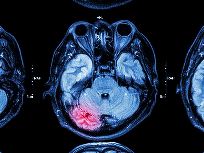 Brain discovery brings fresh hope for new concussion treatments
