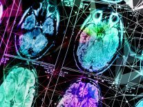 Those with half of their brain removed are 'remarkably high functioning'